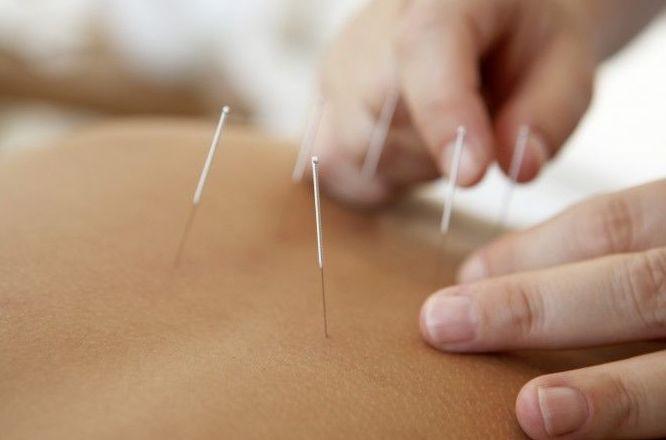 Acupuntura: Tratamientos & Tarifas de Centro de Osteopatía Jon Castresana