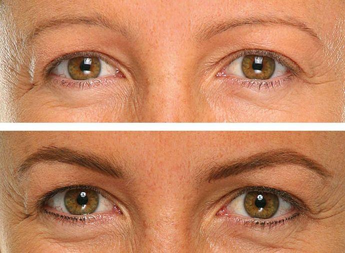 Micropigmentación de cejas en Adeje