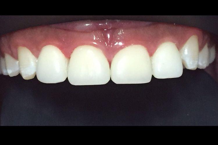 Prótesis dental en Valls