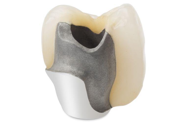 Implantes dentales económicos en Valls