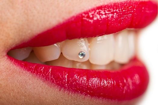 Estética dental: Tratamientos de Dental Valls