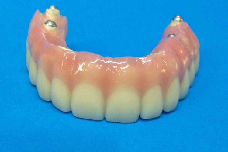Especialistas en prótesis dental
