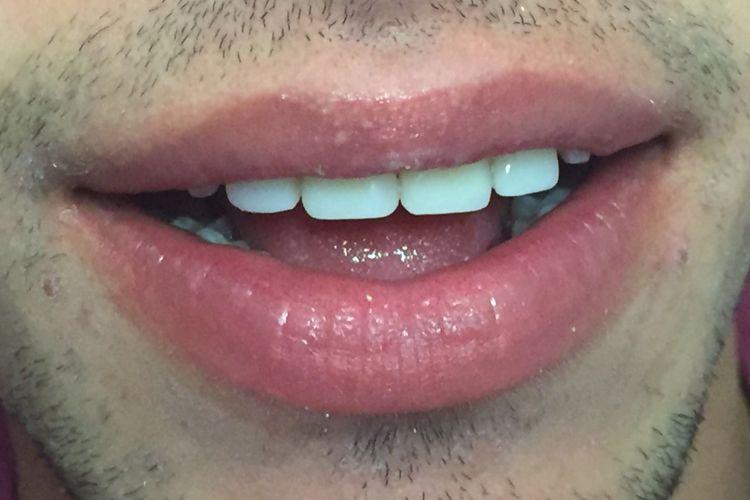 Tratamientos dentales en Valls