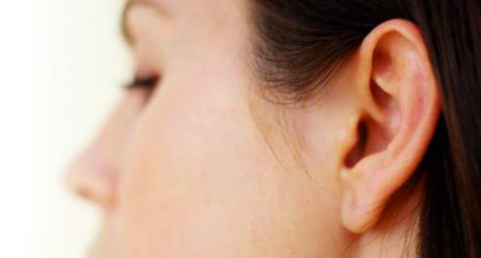 Otoplastia en Madrid|Clínica de Otorrinolaringología