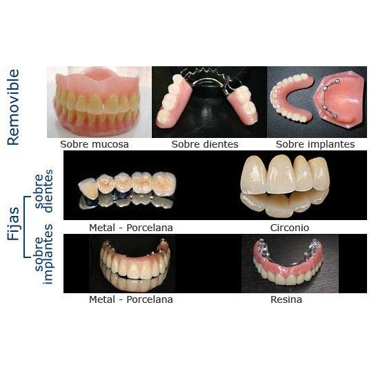 Prótesis dentales: Servicios de Alser Dental
