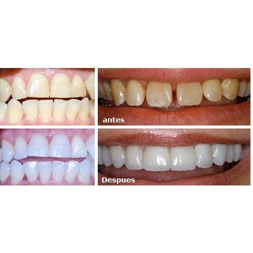 Estética Dental: Servicios de Alser Dental