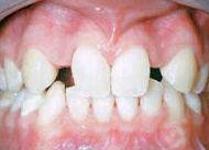 Agenesia dental