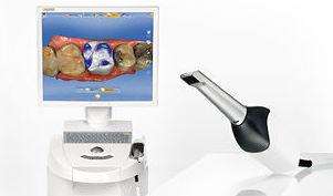 cmd dr lorente,dentallorente.com, scanner intraoral,dientes en una hora, coronas sin metal