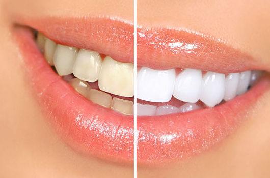 clinicas dentales blanqueamiento dental economico valencia y silla
