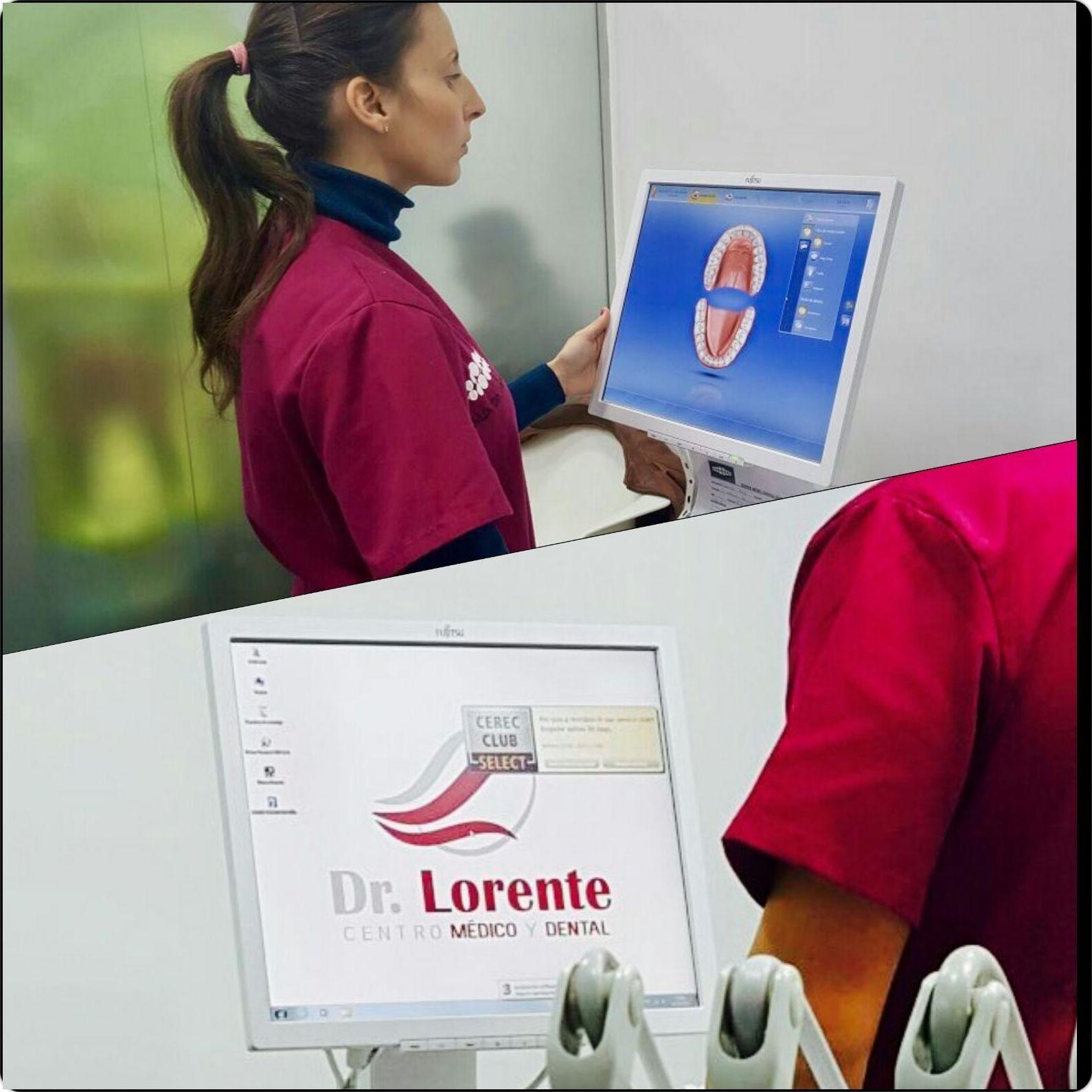 Nueva tecnologia. Escaner intraoral 3 D