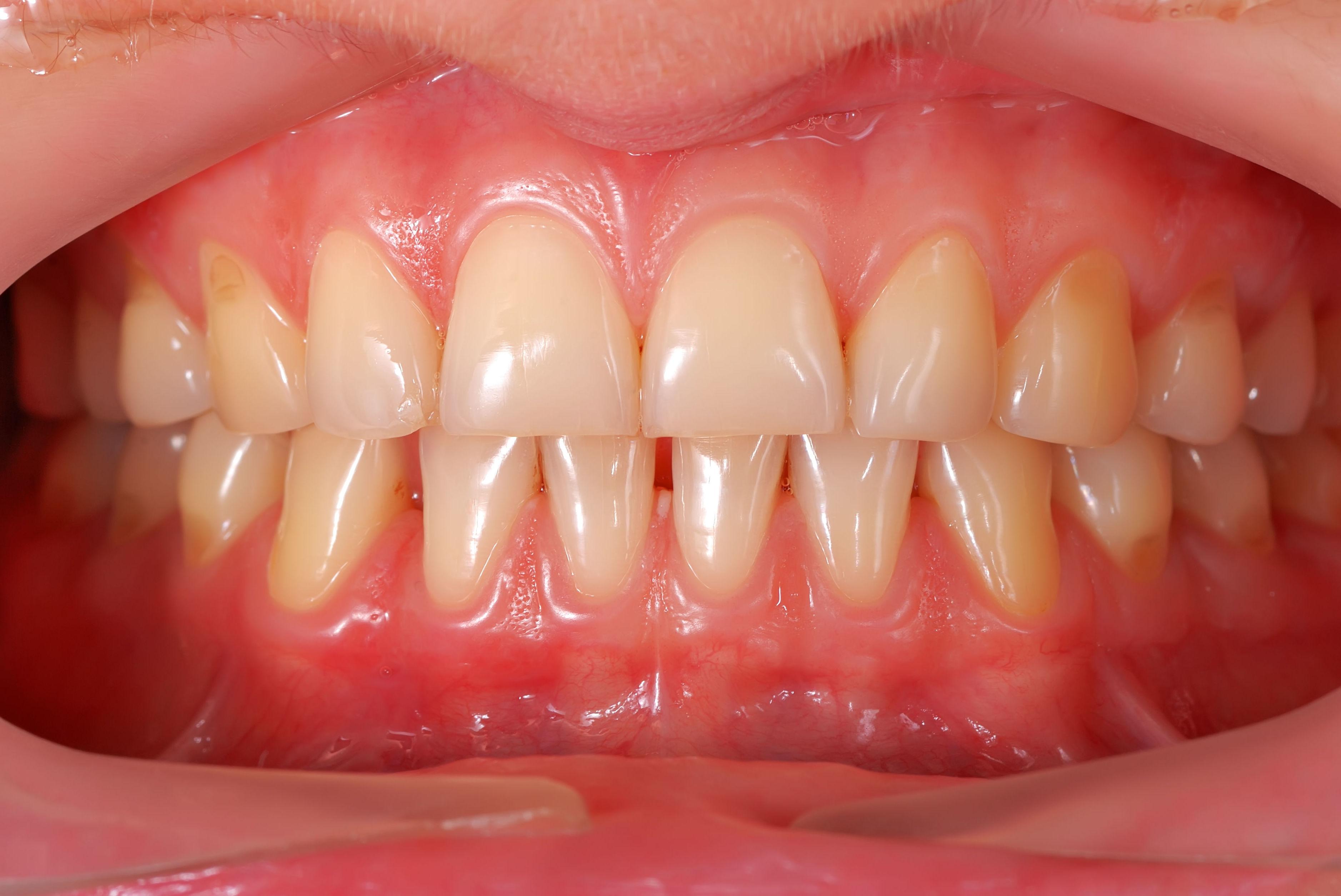 Periodoncia: Tratamientos  de Centre Medic i Dental Lorente