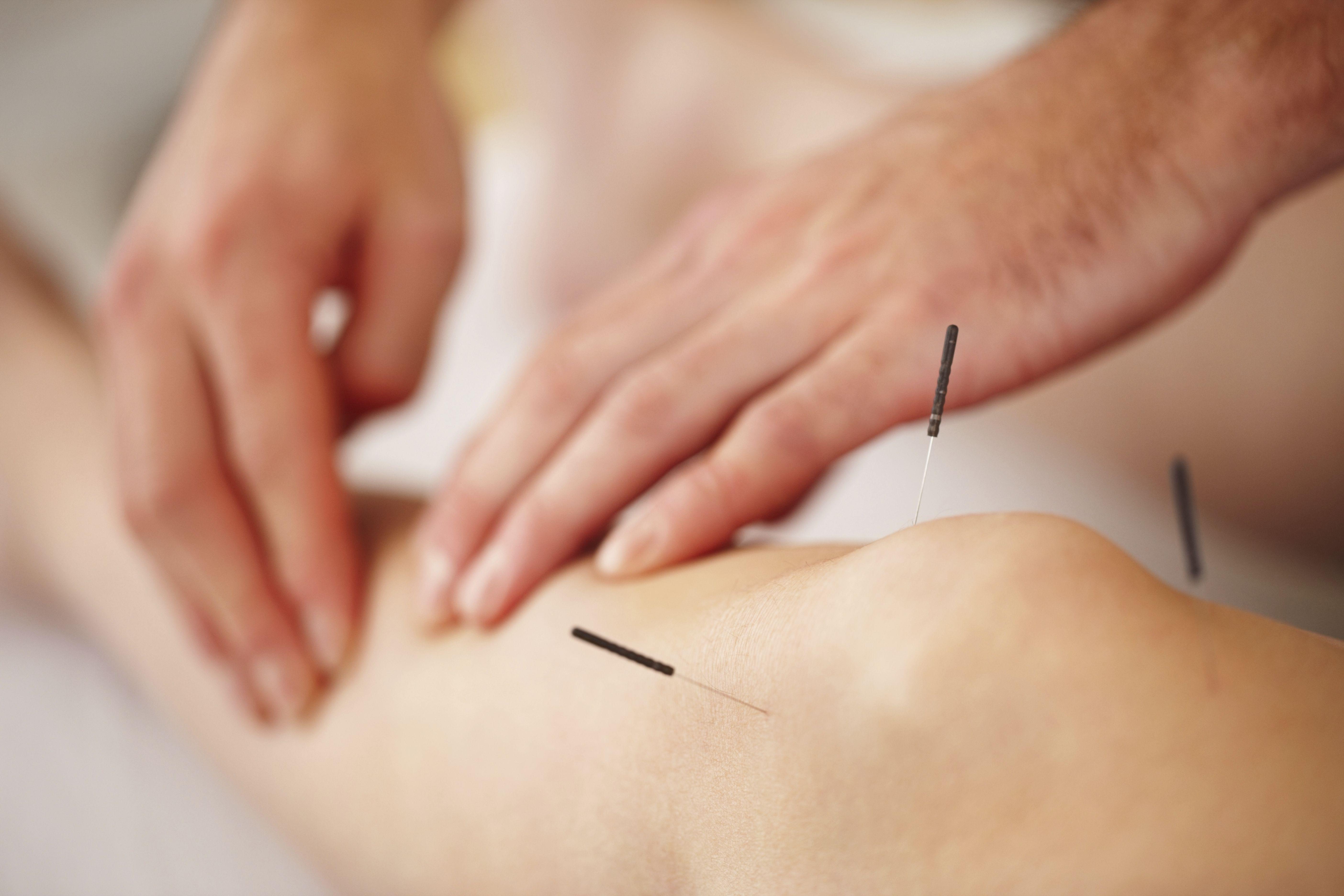 Dolores articulares, óseos y musculares: Tratamientos de Diezhandino Acupuntura