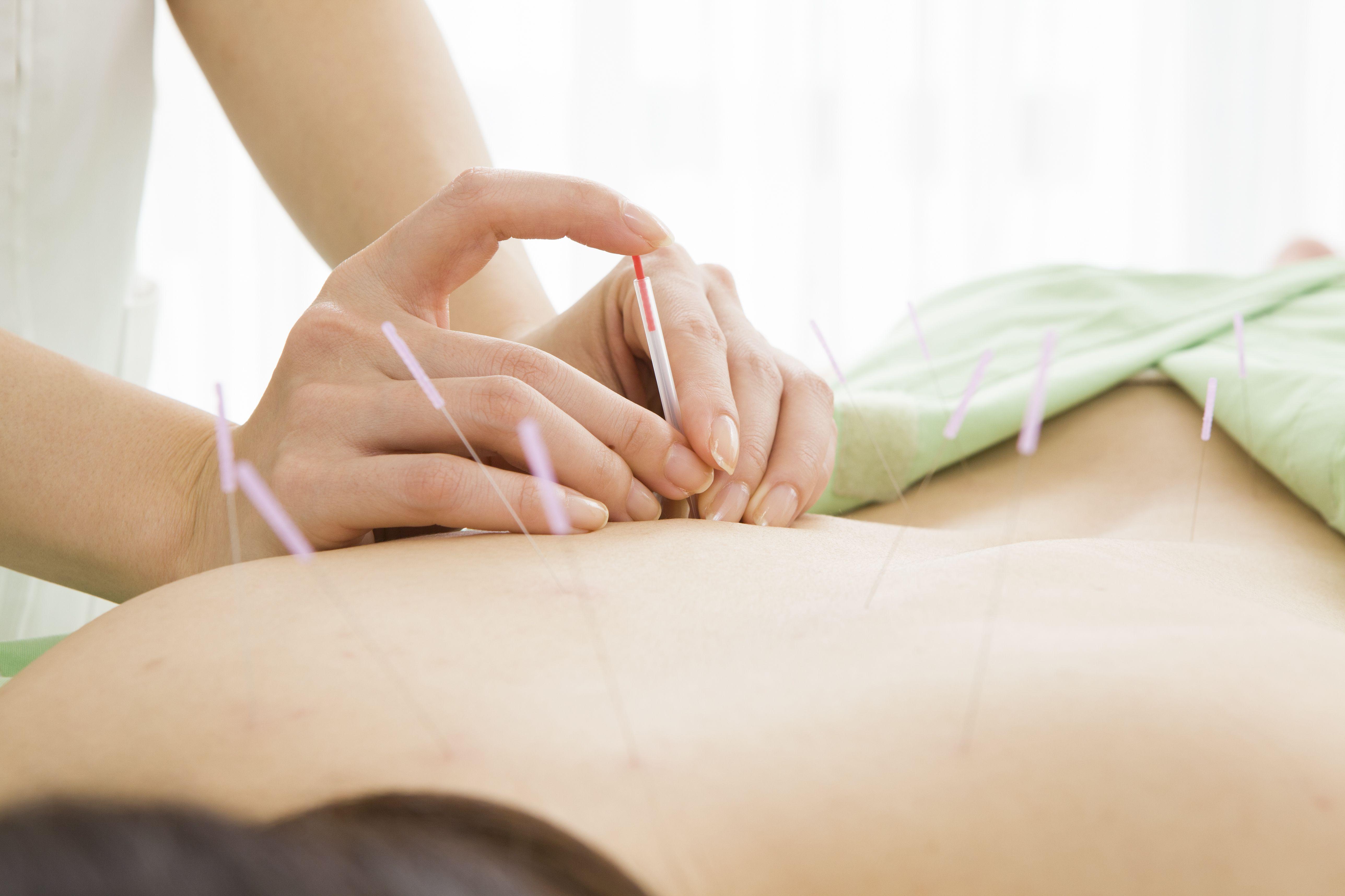 Patologías de la espalda: Tratamientos de Diezhandino Acupuntura
