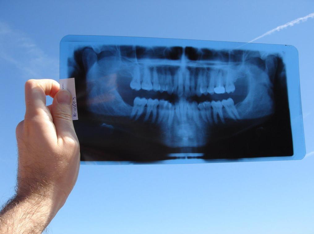 Clínica Dental Roger de Flor \u002D Tratamientos dentales en Zaragoza