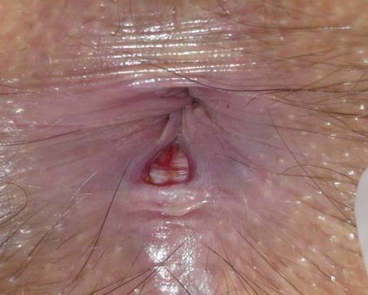 Fisura anal crónica