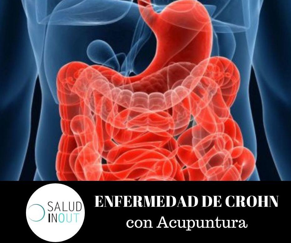 ENFERMEDAD DE CROHN con Acupuntura