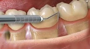 Periodoncia: Tratamientos de Clínica Dental Sant Jordi