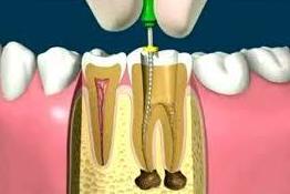 Endodoncias: Tratamientos de Clínica Dental Sant Jordi