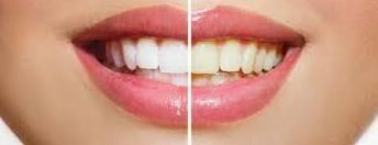 Blanqueamiento Dental : Tratamientos de Clínica Dental Sant Jordi