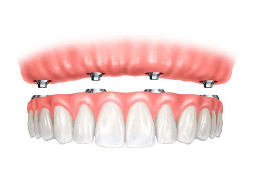 Odontología restauradora: Tratamientos de Centro Dental Europa