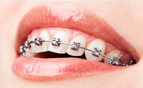 Ortodoncia: Tratamientos de Centro Dental Europa