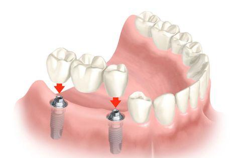 Rehabilitación protésica: Tratamientos de Centro Dental Europa