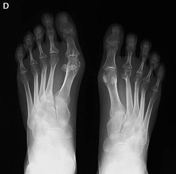 Artritis reumatoide: Tratamientos y Terapias de Ciudad Alta