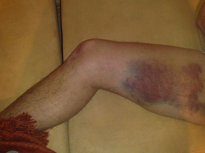 Lesiones deportivas: Tratamientos y Terapias de Ciudad Alta
