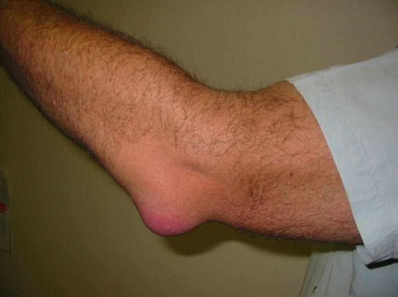 Bursitis: Tratamientos y Terapias de Ciudad Alta