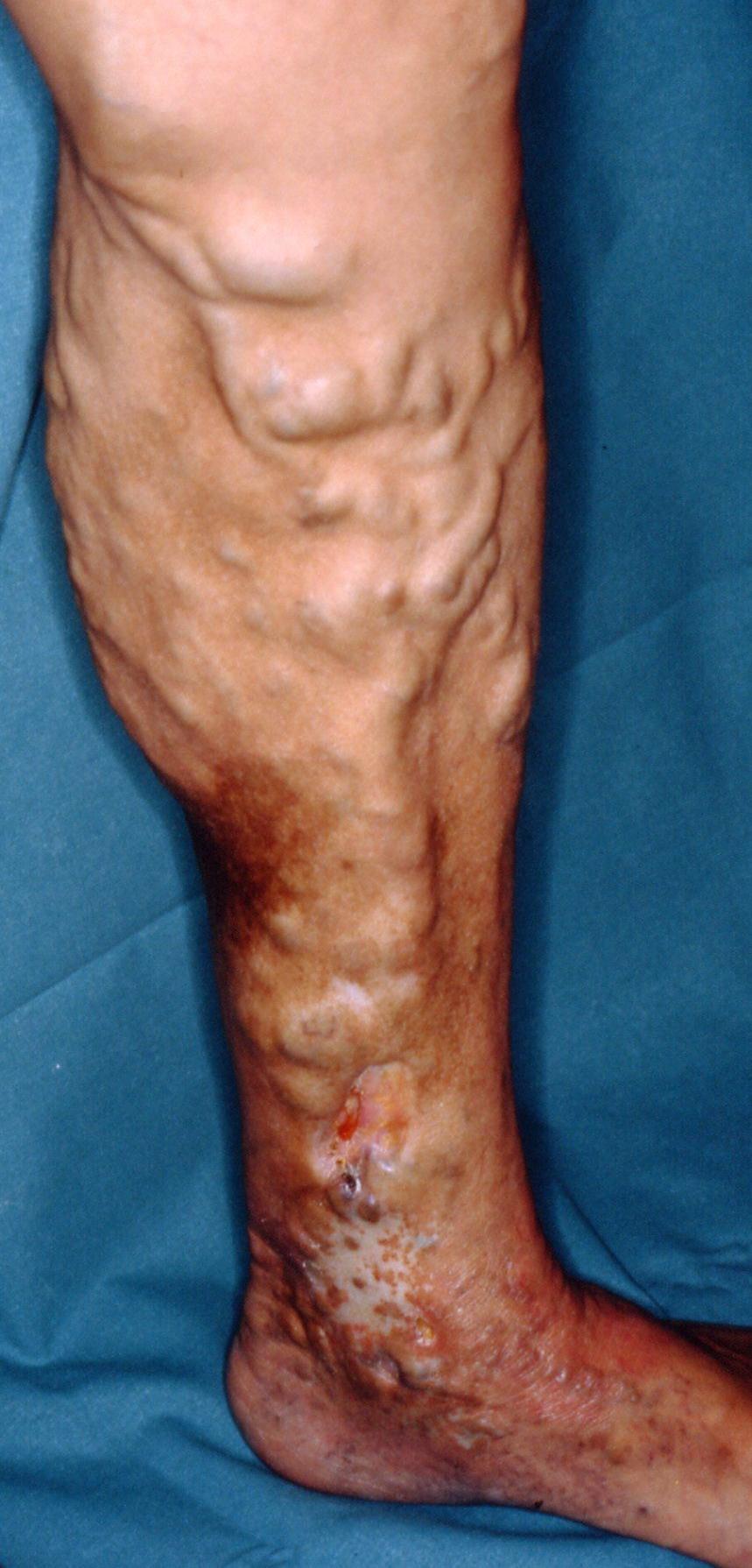 Varices y úlcera venosa