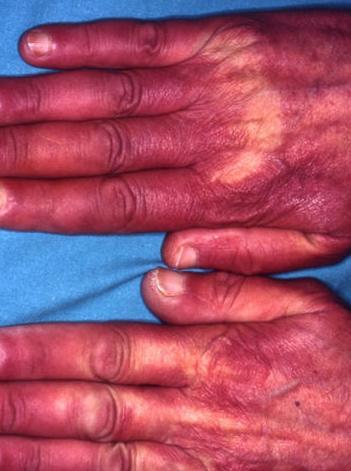 Arteriopatías funcionales
