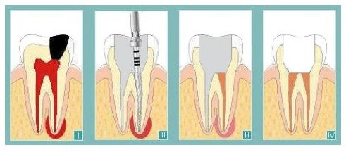 ENDODONCIA: Especialidades  de Clínica Dental Enguera }}
