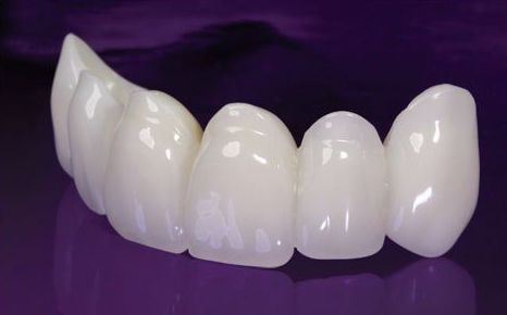 FUNDAS DENTALES CON O SIN METAL: Especialidades  de Clínica Dental Enguera