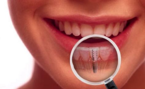 Implantes dentales: Especialidades  de Clínica Dental Enguera