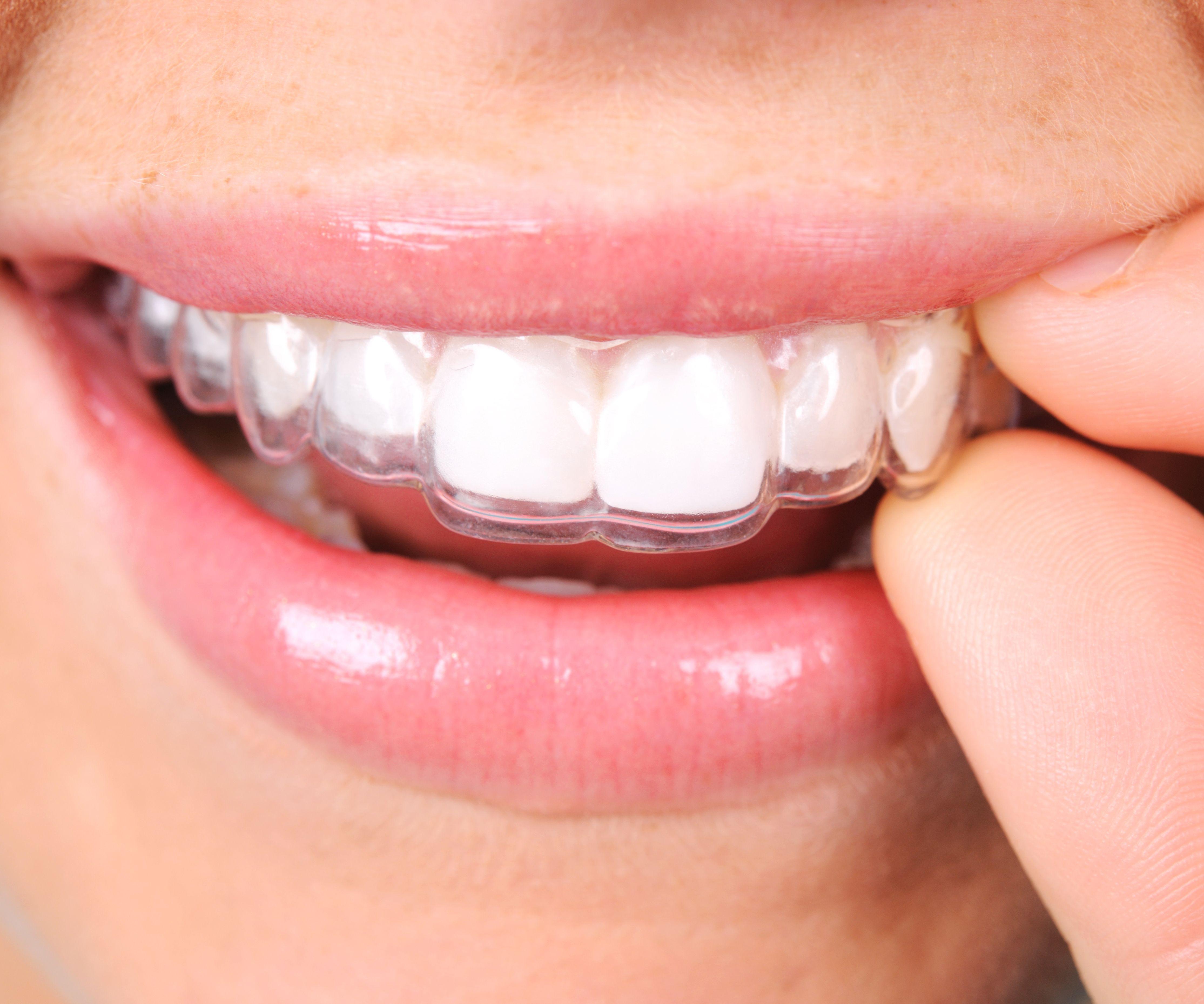 Foto 12 de Clínicas dentales      en Gandía | Clínica Dental Empar Benlloch