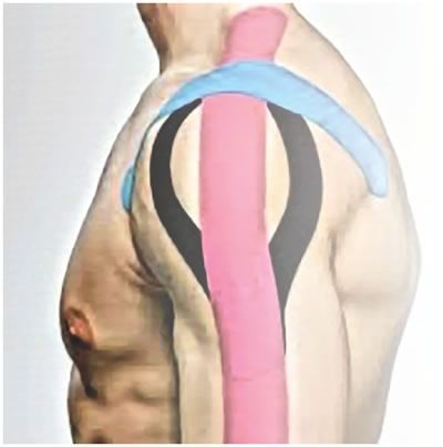 Vendaje: kinesiotaping y taping: Cursos de Instituto Aragonés de Osteopatía