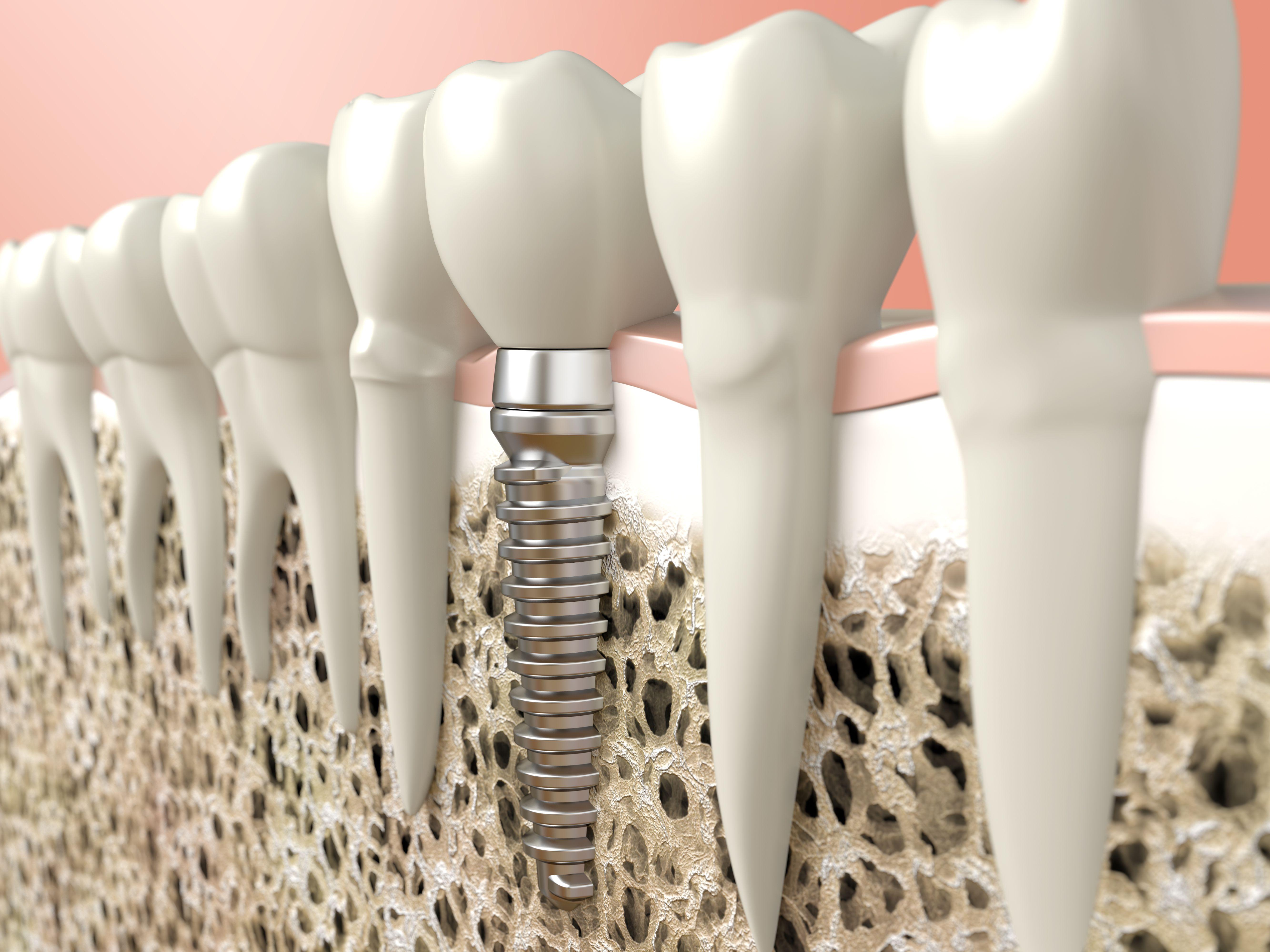 Implantología: Tratamientos de CLÍNICA DENTAL GIRONÉS CALDÉS