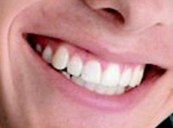 Consiga una sonrisa perfecta