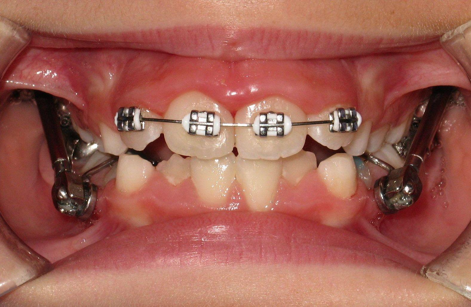 Ortodoncista Baza