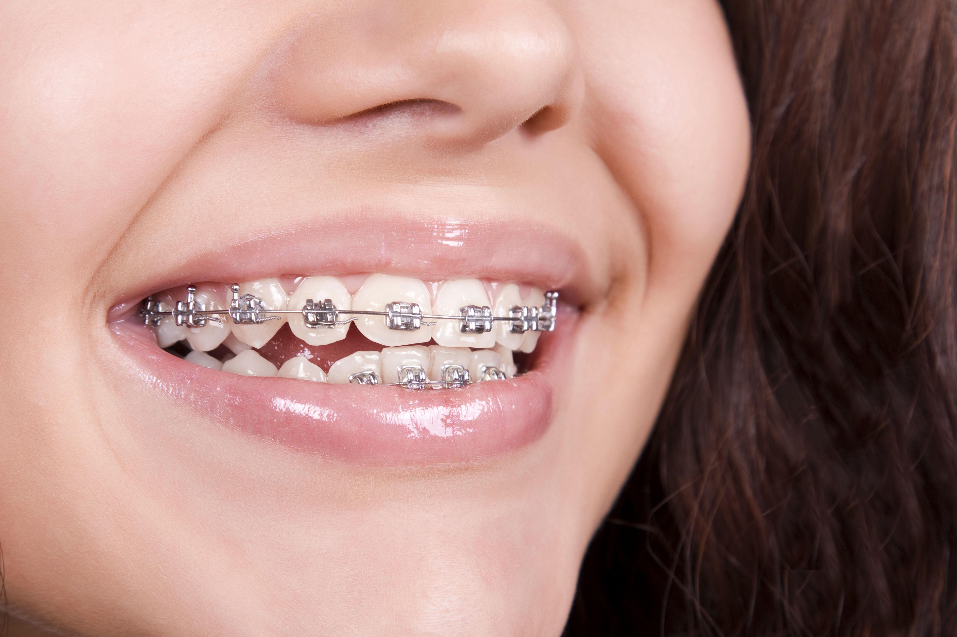 Aprovechando tendencias en ortodoncia