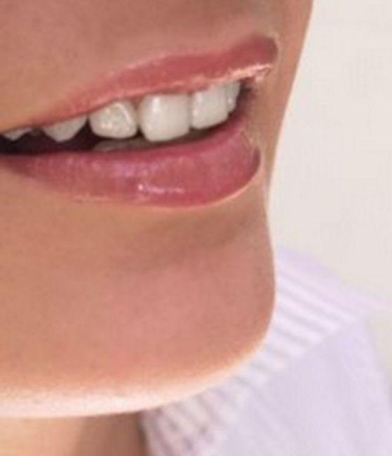 Estética dental: Tratamientos de Vitaldent