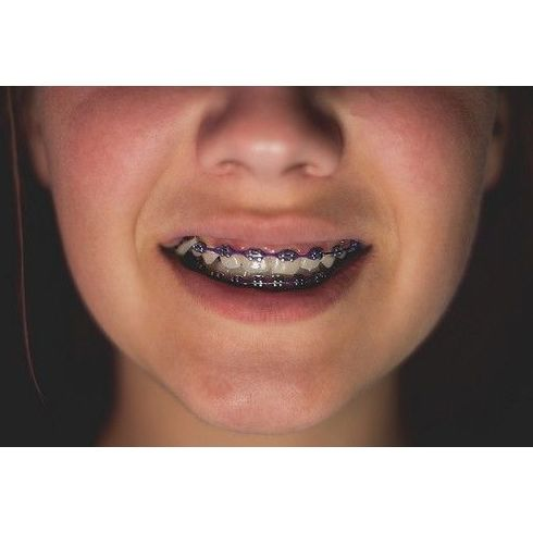 Ortodoncia infantil: Tratamientos de Vitaldent