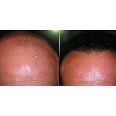 Comienzo de la alopecia