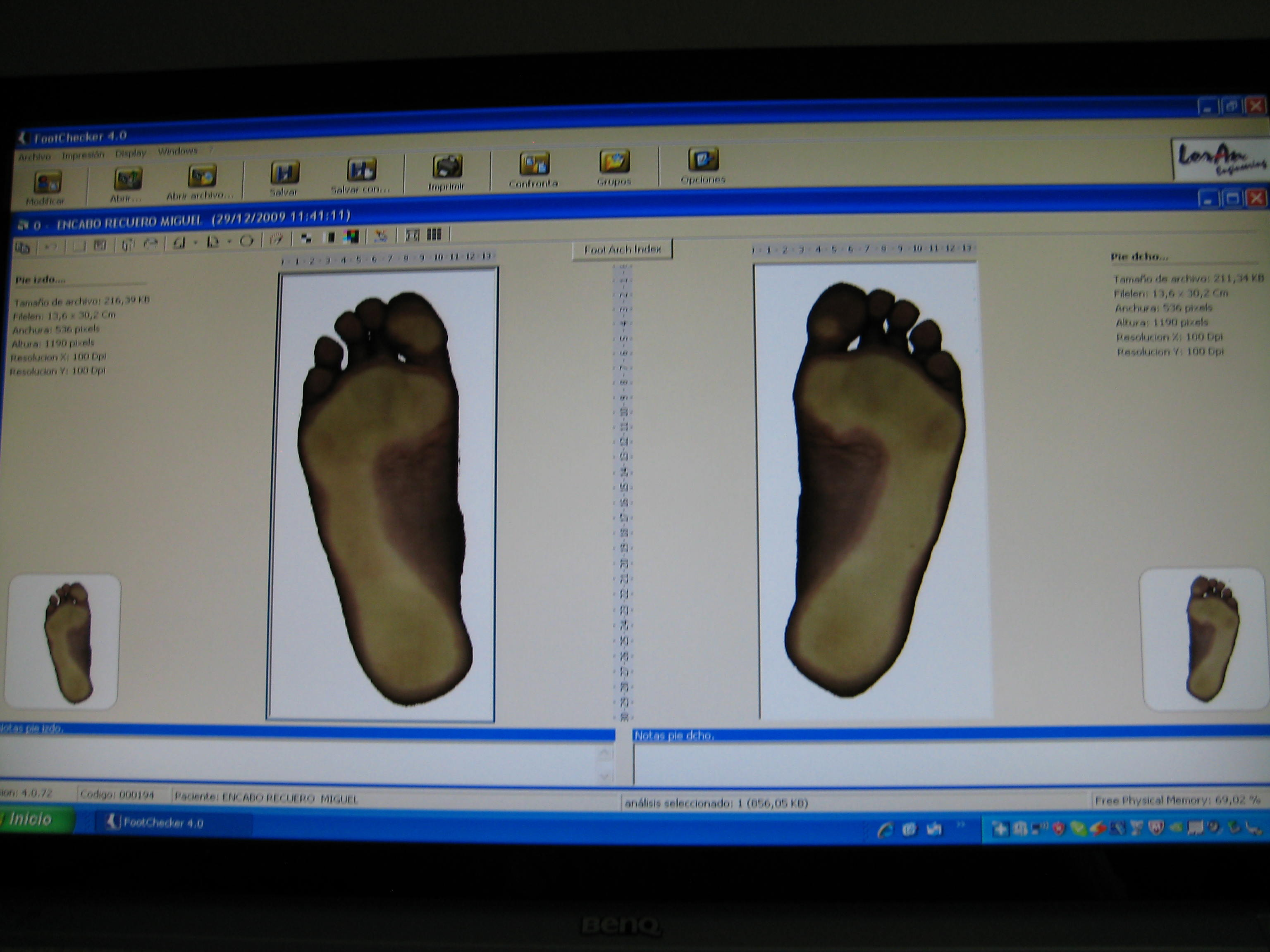Plantillas ortopedicas a medida