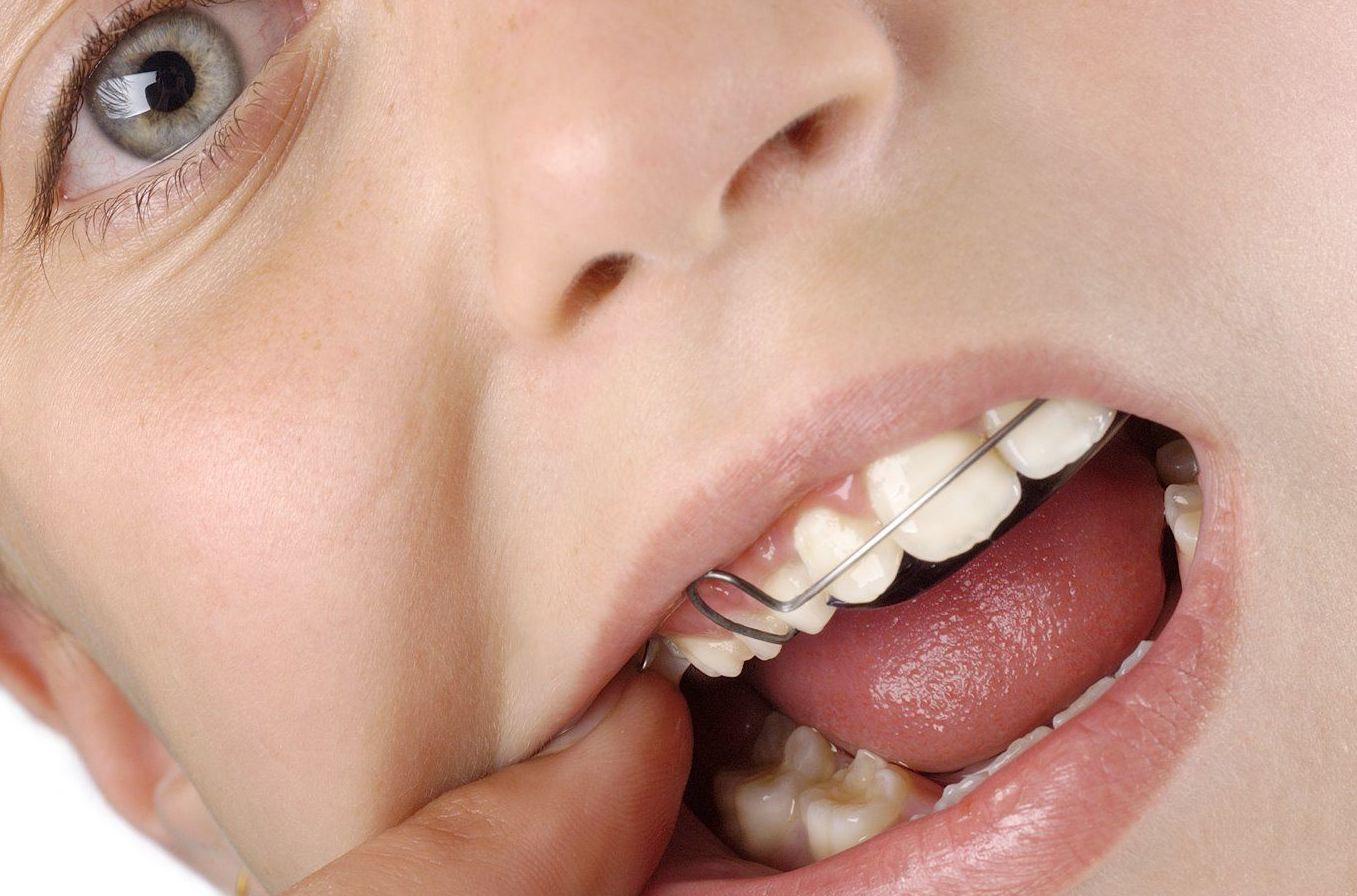 En Clínica Dental PiferSystem de Valencia recomendamos visitar al ortodoncista a partir de los siete años de edad.