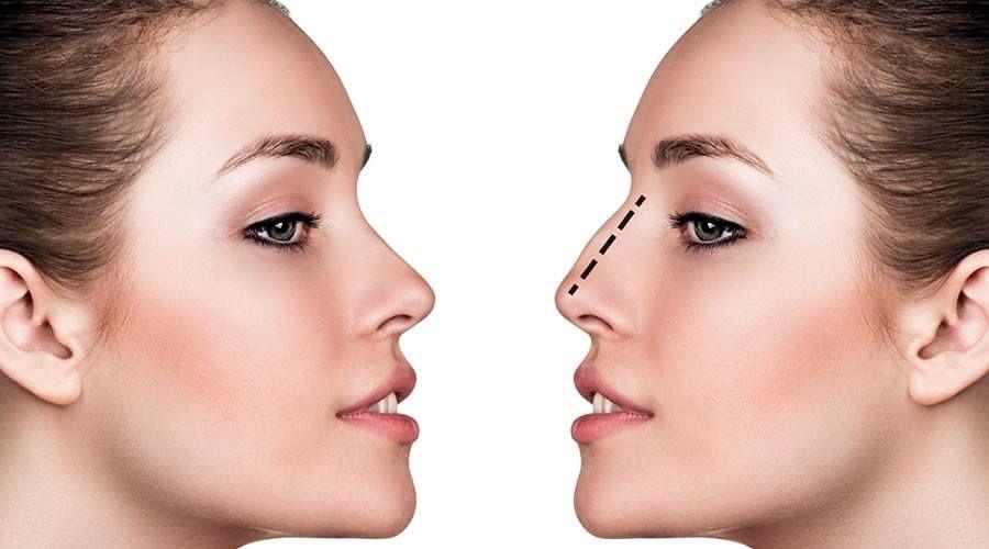 Rinomodelación no quirúrgica: Tratamientos de Aurea Esthetic