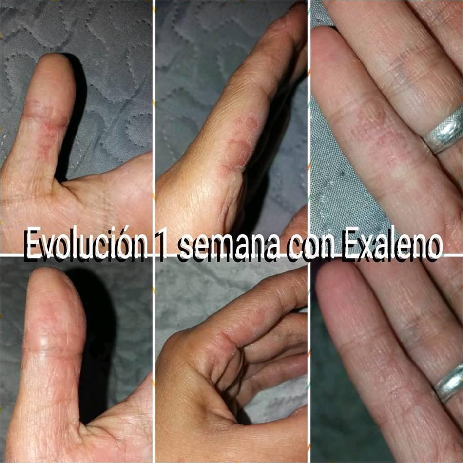 Dermatitis en manos que se trata con jabón de exaleno