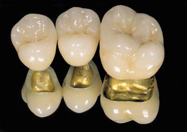 Foto 9 de Protésicos dentales en Madrid | Ángel Dueñas Laboratorio Dental