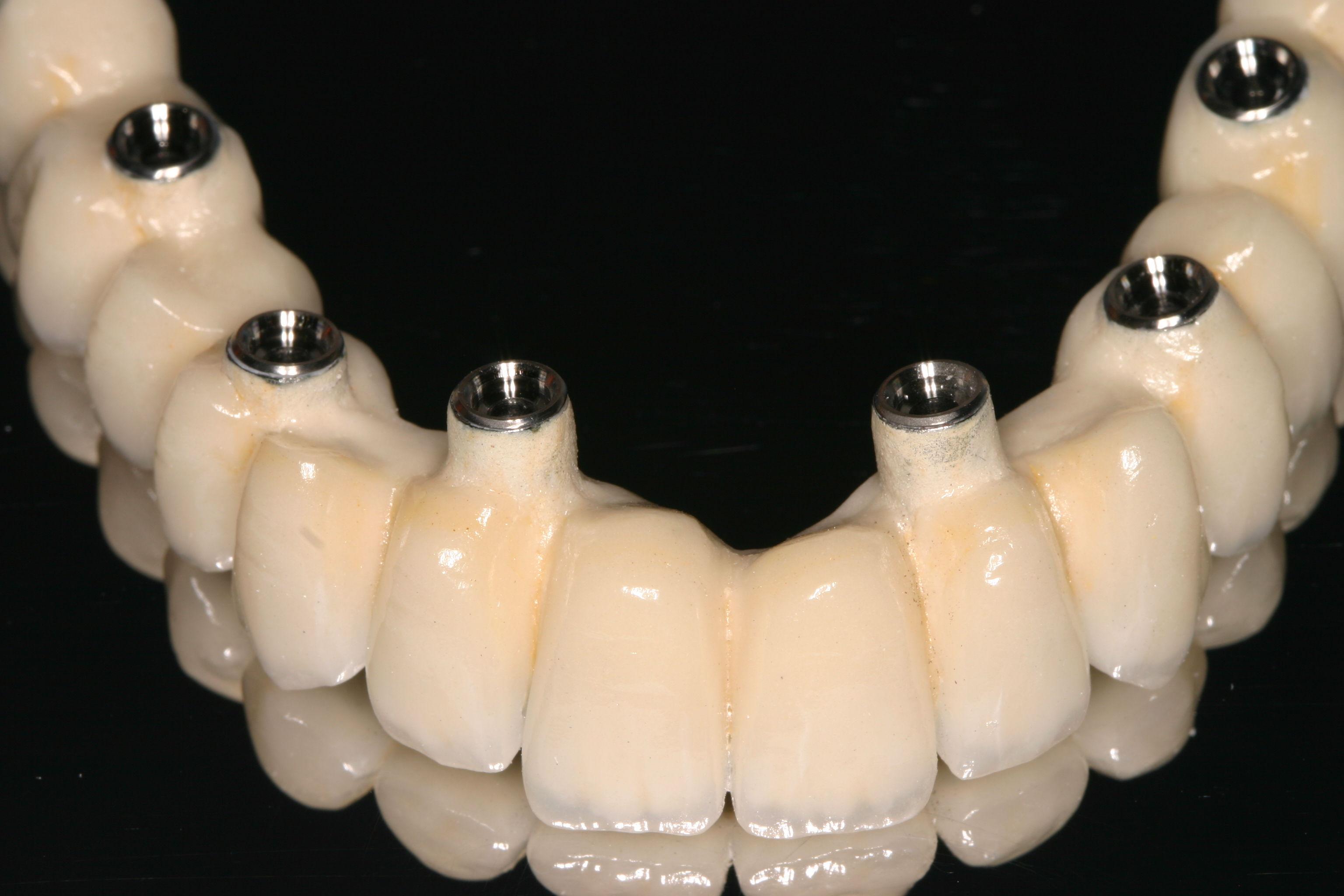 Foto 8 de Protésicos dentales en Madrid | Ángel Dueñas Laboratorio Dental