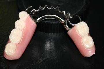 Foto 5 de Protésicos dentales en Madrid | Ángel Dueñas Laboratorio Dental